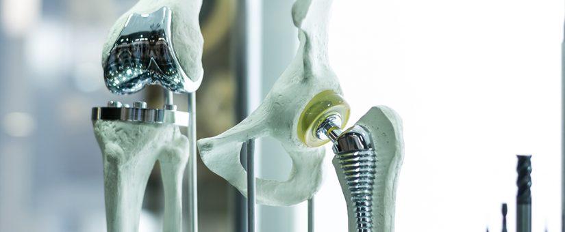Stents e implantes de quadril e joelho serão rastreados